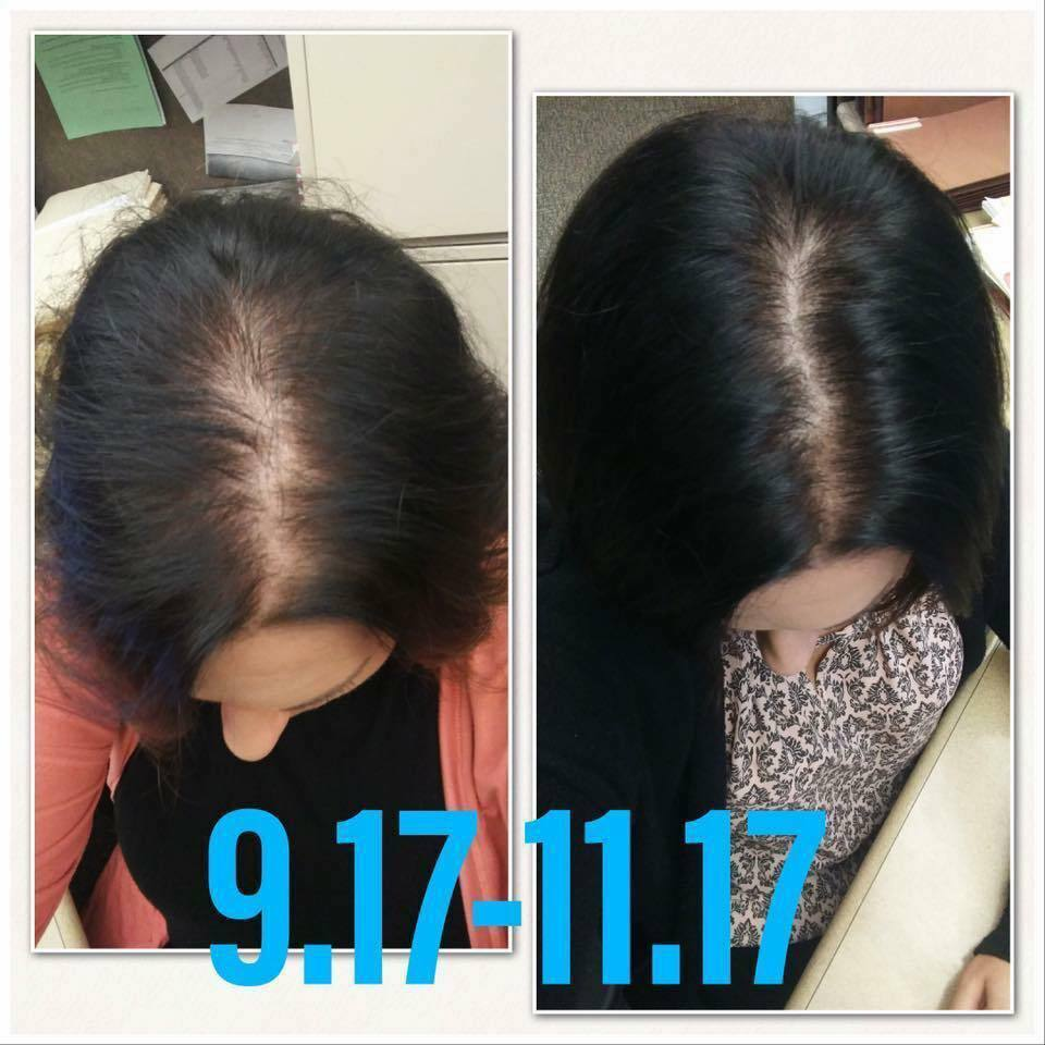 How Monat Helps Your Hair Grow Direct Sales Party Plan And Network Marketing Companies Member Article By Emily Moore