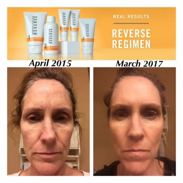 reverse regimen before and after photo rodanfields 2 year change in skin