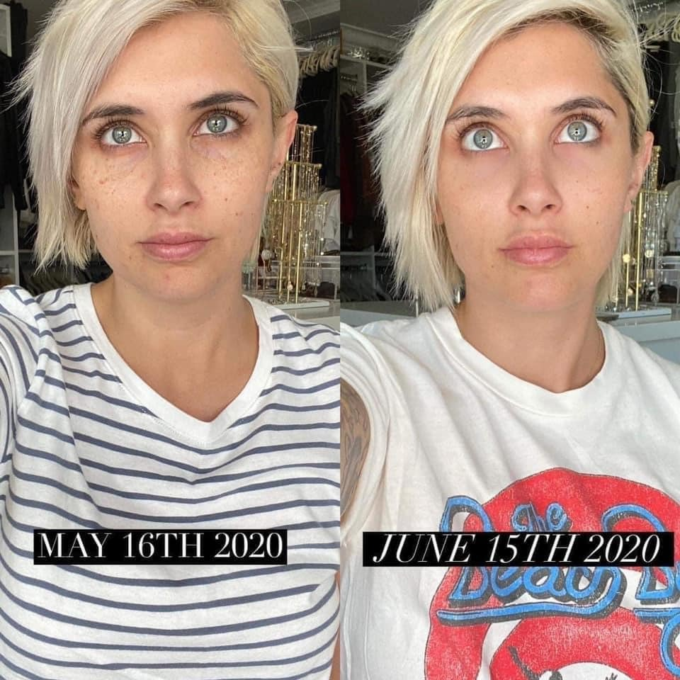 Tired Sagging Eyes Meet Younique Eye Cream Direct Sales